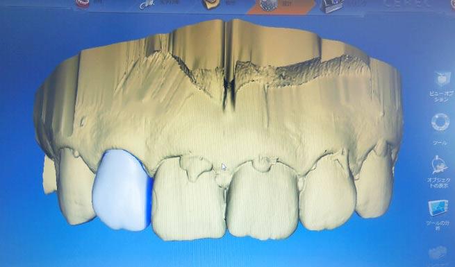 メリィハウス歯科クリニック 衛生士診療風景
