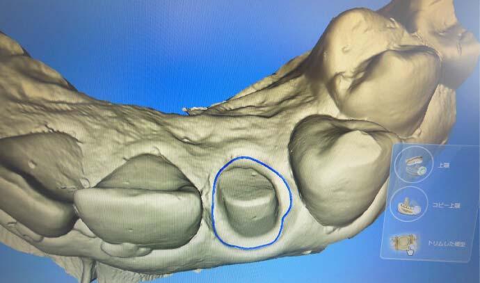 メリィハウス歯科クリニック 診療風景