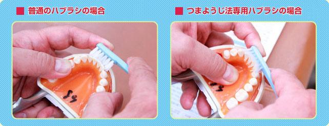 たかはし歯科医院 ブラッシング方法